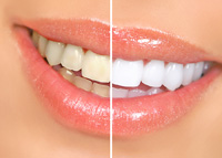 teeth whitening Harrisburg PA | Dentist